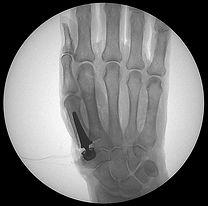 Fm control fluoroscopia de baja radiacion equipos portatiles de rayos x Xiscan 4400