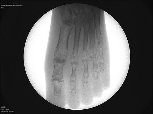 Fm control Equipos portatiles de rayos X  fluoroscopios portátiles fluoroscopia