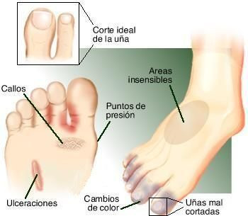 Charcot pie signos de diabetes