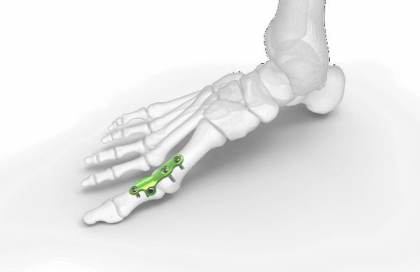 FM CONTROL orthosolutions material para podologia osteosintesis del pie