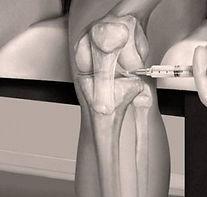 Fm Control Xiscan 4400 Equipo de fluoroscopia portatil fluoroscopio cirugia de pie MIS minimamente invasiva fluoroscopia Xiscan 4400