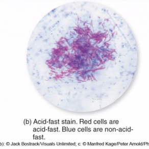 Gram Stains
