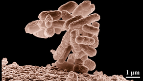 Escherichia coli ... the infamous E.coli bacteria