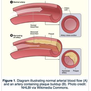 Cholesterol & Atherosclerosis