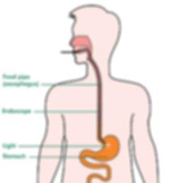 Stomach-endoscopy-labelled_tcm9-293348.j