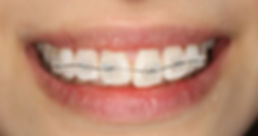川崎 川崎駅 歯科医院 歯医者 ホワイトニング 矯正歯科