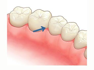 歯ブラシ以外にフロスや歯間ブラシを使ってますか?