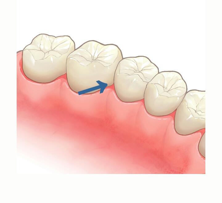 歯と歯の間には歯ブラシの毛先が入らない