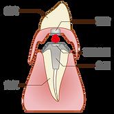 磁石式義歯2