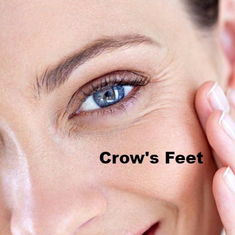 crows feet 1_edited
