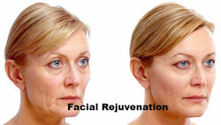before-after-juvederm_edited