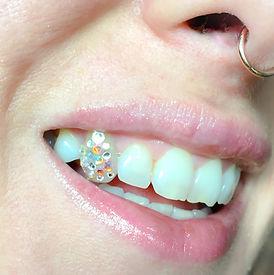 amazing tooth gems