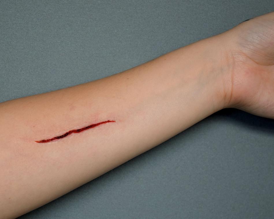 no blood cut edited.jpg