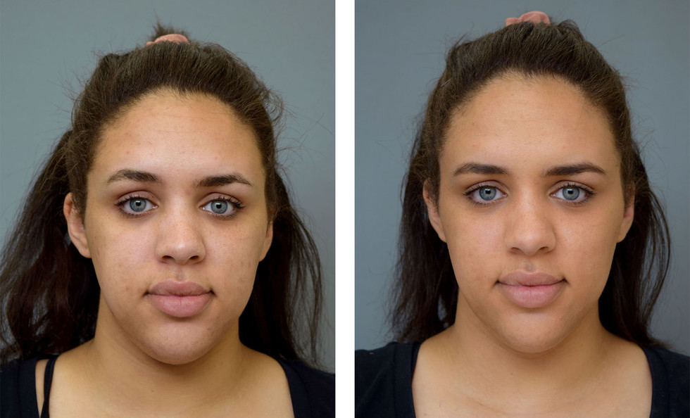 Before and After Corrective Makeup