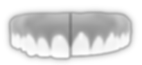 effects of bruxism teeth grinding tooth erosion