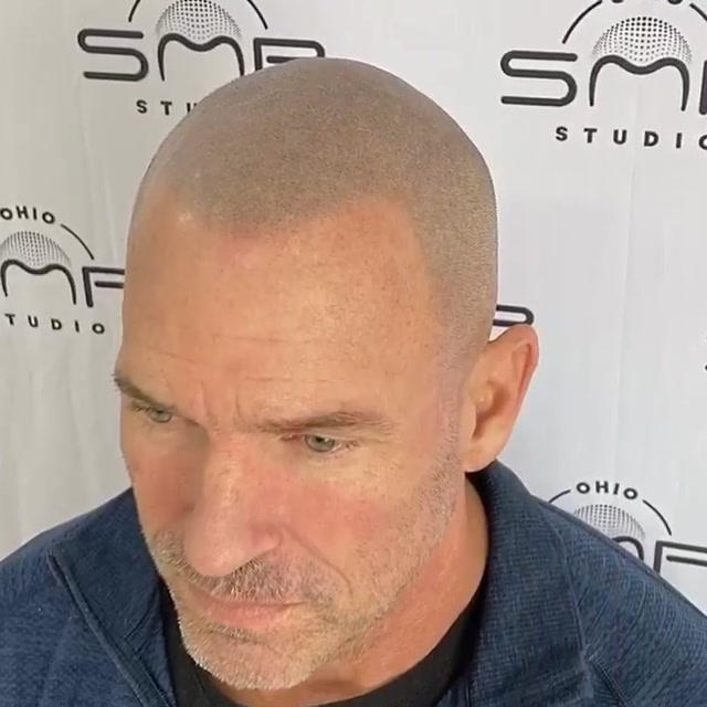 hair micropigmentation Wayne County Ohio