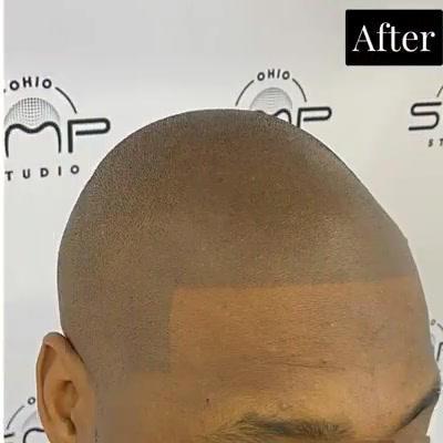 hair solution Cuyahoga County Ohio.mp4