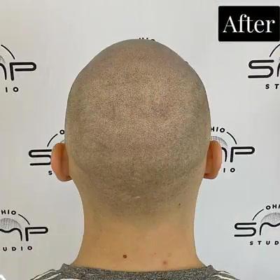 best scalp micropigmentation Cuyahoga Co