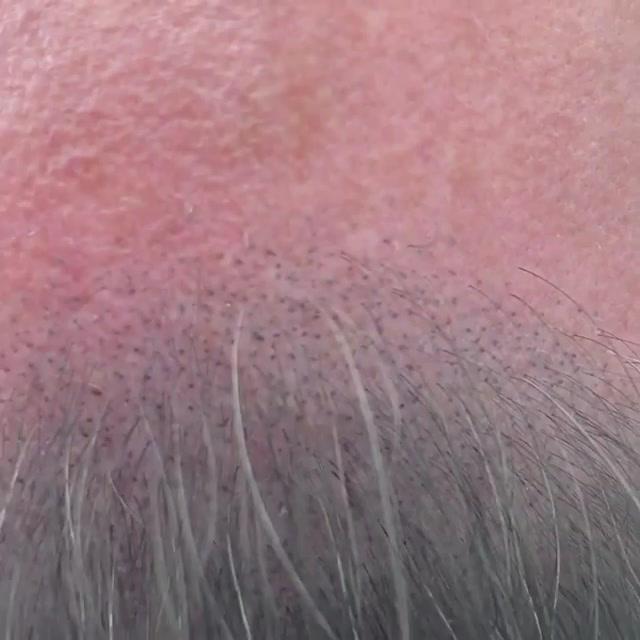 hair loss solution Cuyahoga County Ohio.