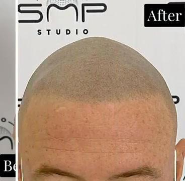 how to treat alopecia Cuyahoga County Oh
