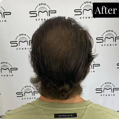 scalp micro Cuyahoga County Ohio.mp4