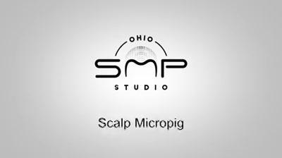 hair loss clinic Cuyahoga County Ohio.mp