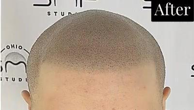 bald treatment Cuyahoga County Ohio.mp4