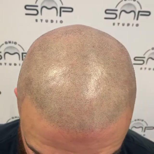 treatment for alopecia Cuyahoga County O