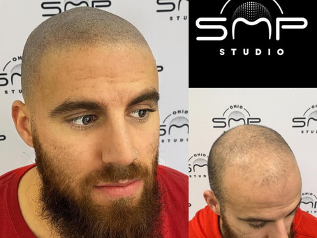 20 Reasons to get SMP (Scalp Micropigmentation) Hair Tattoos