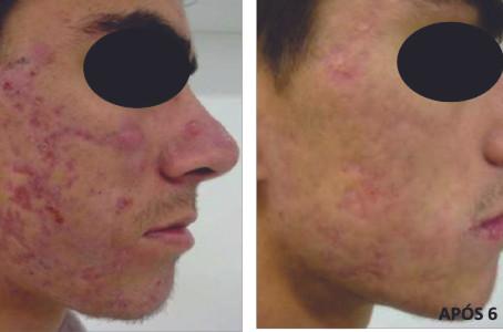 FATORES de CRESCIMENTO - Ótima Alternativa para Tratamento de Cicatrizes, Melasmas e Alopécia