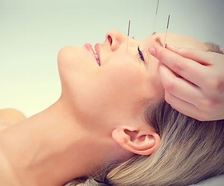 Chinese-Acupuncture.jpg