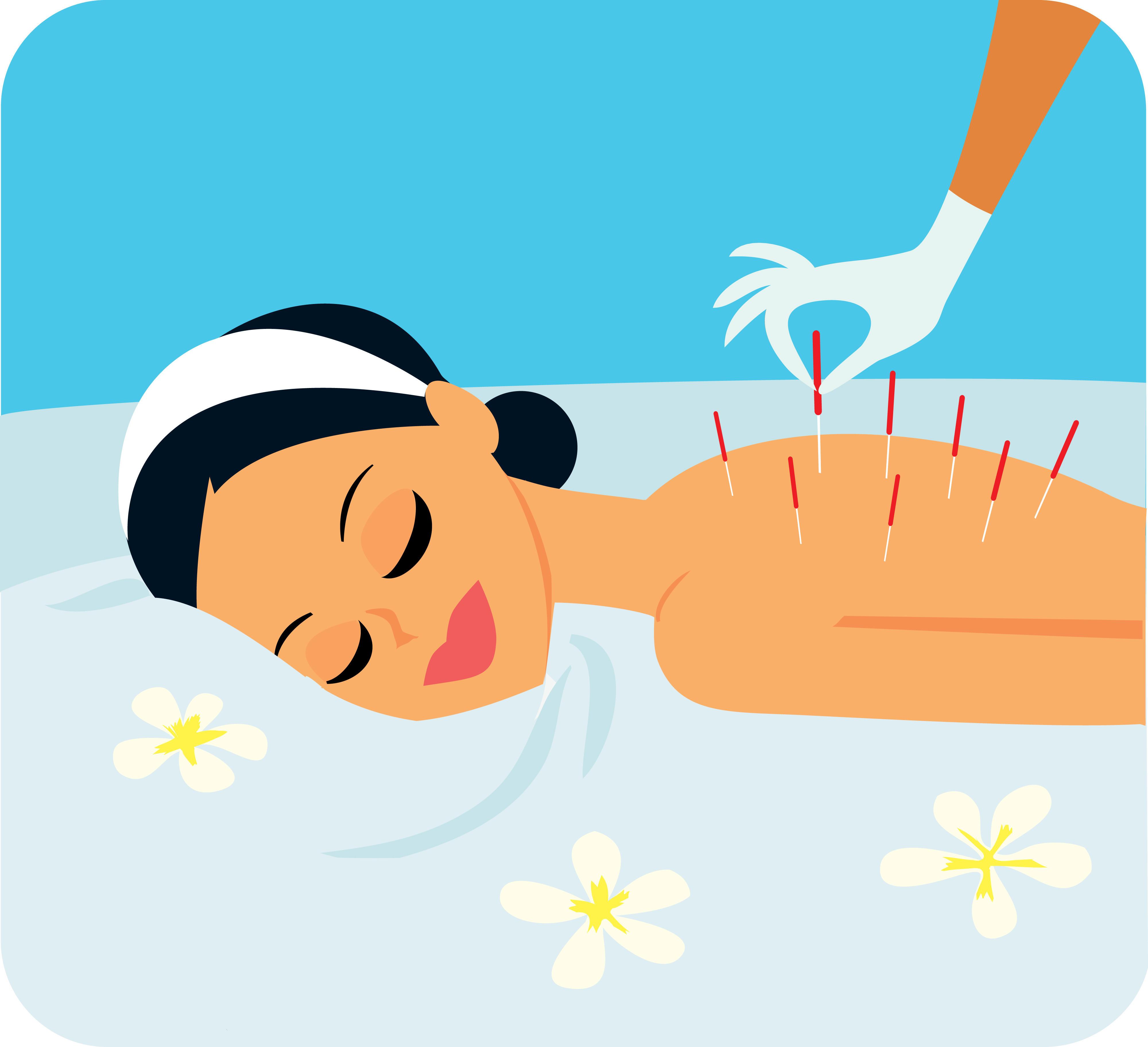 Acupuncture 針灸