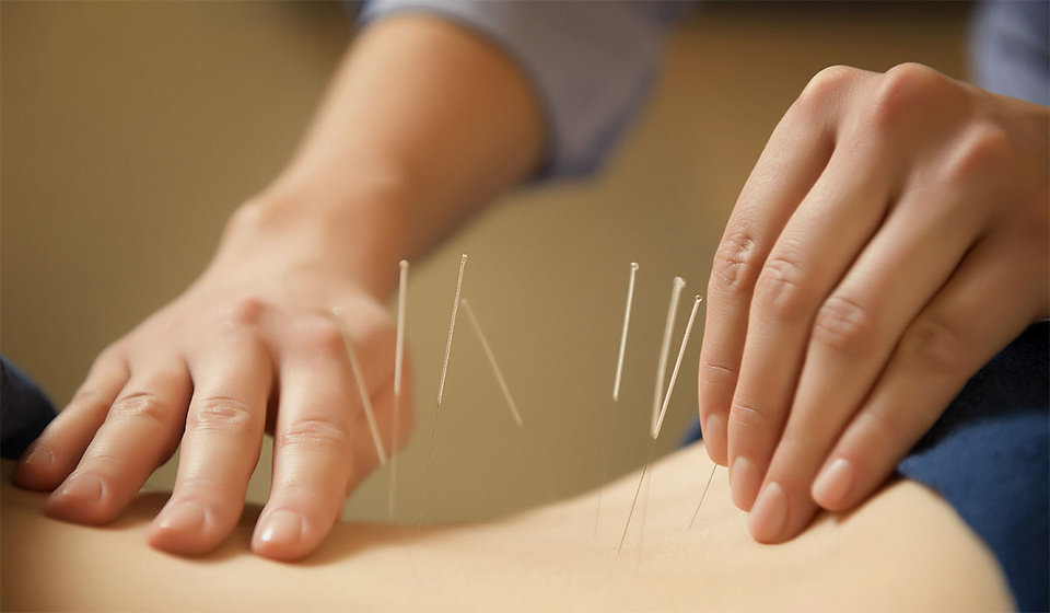acupuncture-page-img.jpg