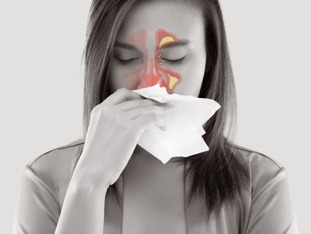 Do I Need a Doctor to Treat a Sinus Infection?