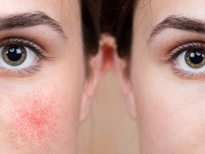 Acne, Rosacea, and Rashes — What's the Difference?