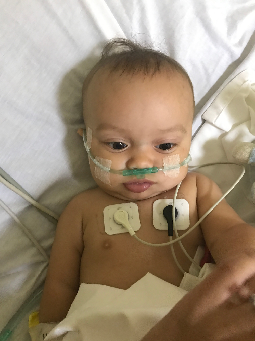 Judah with EKG and oxygen in NICU bed.