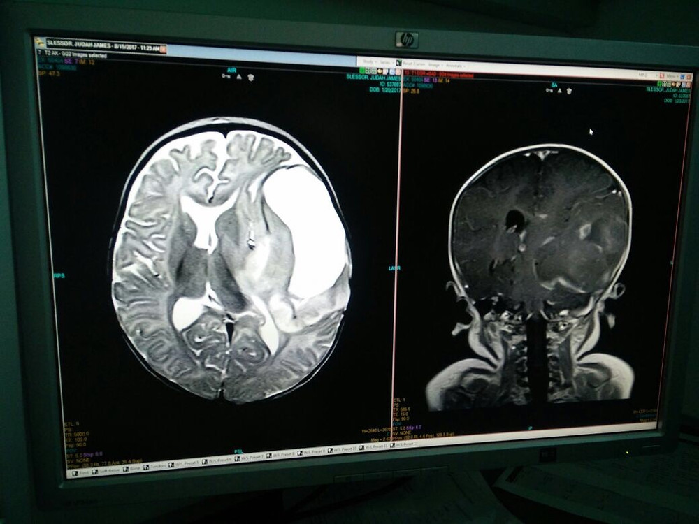 MRI image showing large mass in left temporal lobe