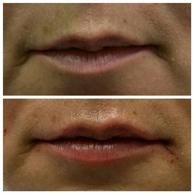 Fillers for beautiful lips