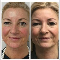IPL and Fractora for pigmentation and skin rejuvenation ✨