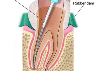 Sedation Endodontists