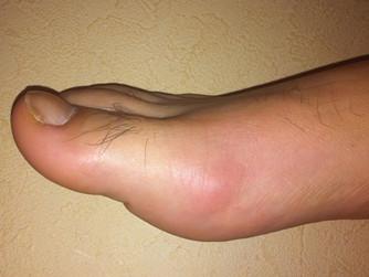 Gout Attacks
