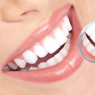 What-is-does-teeth-whitening-involve.jpg