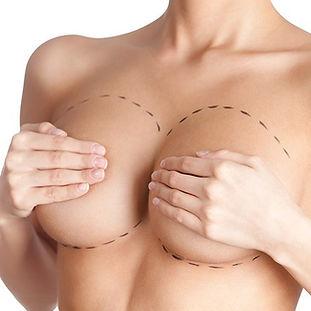 breast-augmentation-enlargement-sheffiel