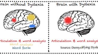 Dyslexia: A  hidden strength
