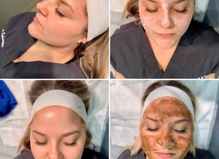 Seven Benefits of Getting a Facial