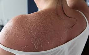 The Best Ways to Treat Peeling Sunburn