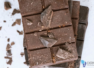 Milk Chocolate, Dairy and Fatty Foods Tied to Acne in Adults