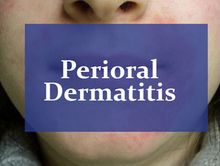 Perioral Dermatitis: Symptoms, Causes, and Treatment