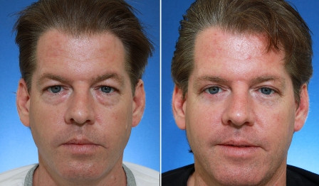 blepharoplasty-before-and-after.jpg