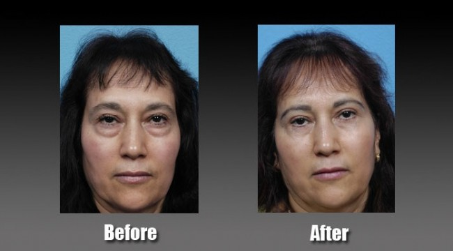 LOWER EYELIDS SURGERY